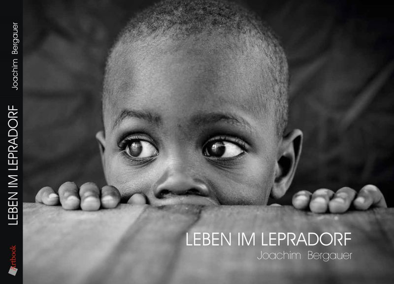 Life In A Leprosy Village by Joachim Bergauer